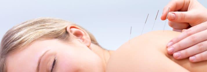 Chiropractic Bettendorf IA acupuncture